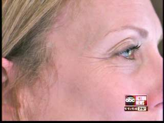 Non-surgical facelift: Does it work?