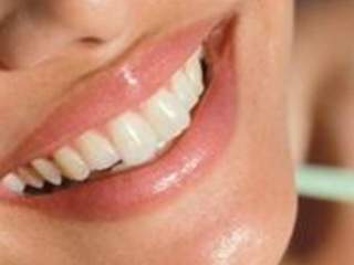smile_teeth_smiling_640x480_20120928181307_JPG