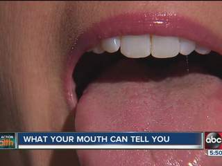 Taking Action for Your Health:  What your mouth can tell you about your body