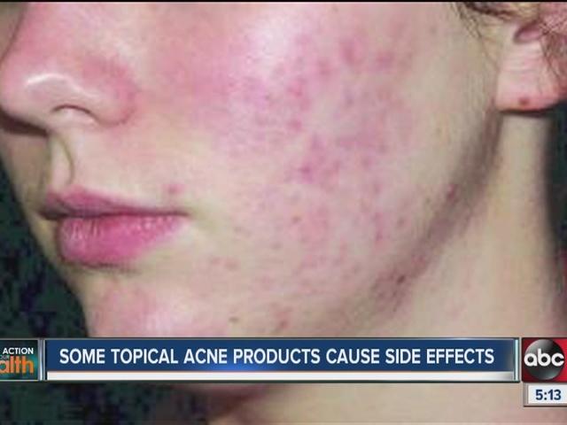 Acne No More - Cure Acne Holistically