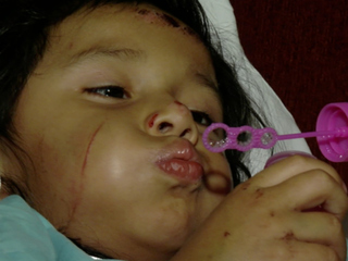 3-year-old injured in hit-and-run back home