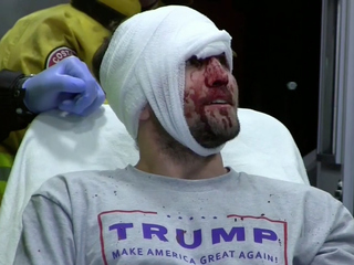 Violent protests outside California Trump rally