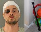 Couple beats burglar with his own baseball bat
