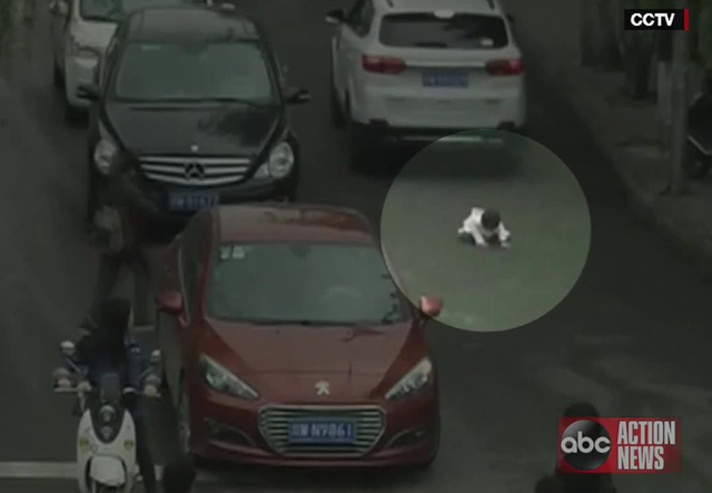 Girl suffers injury after getting hit by auto twice in China