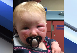 Mother claims sunscreen burned her baby girl