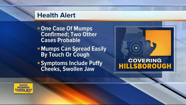 One case of mumps confirmed in Hillsborough County- 2 other probable…