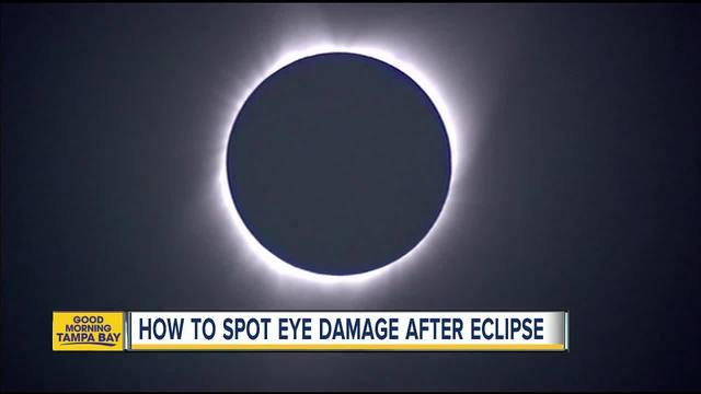 Solar eclipse- Eye damage can show later