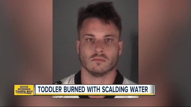 Dade City man admits to pouring scalding hot water on toddler