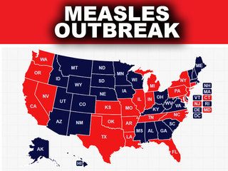 Measles outbreak hits 21 states, CDC says