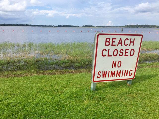 Alligator attacks woman at Citrus County lake