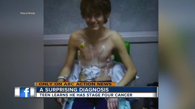 Florida teen stunned by Hodgkin's lymphoma diagnosis