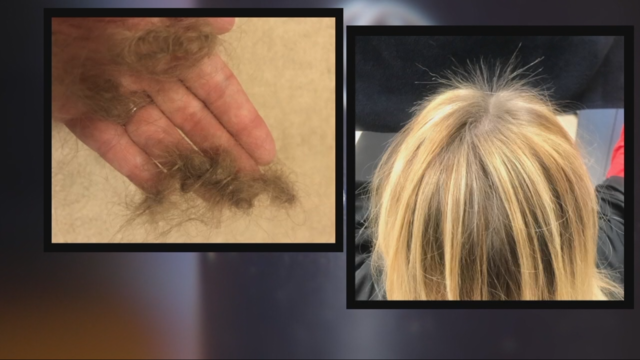 Hundreds Across The Country Say Monat Shampoo Caused Balding Scalp Sores