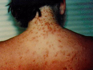 Sea lice reported along Florida beaches