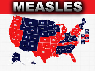 Measles reported in 21 states, CDC says