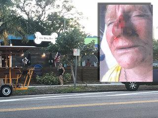 Woman sues bar after dog bit her nose